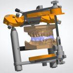 bite_splint_design_w_articulator