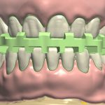 dentureteeth_positioning_guide