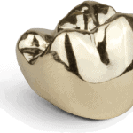 Gold_Crown_2