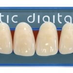 Artic_digital_tooth_mould